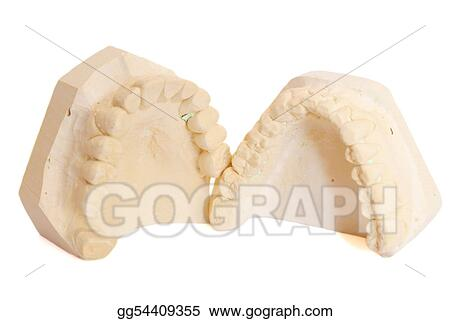 dental impression 5