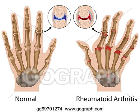 Arthritis in Fingers Clip Art
