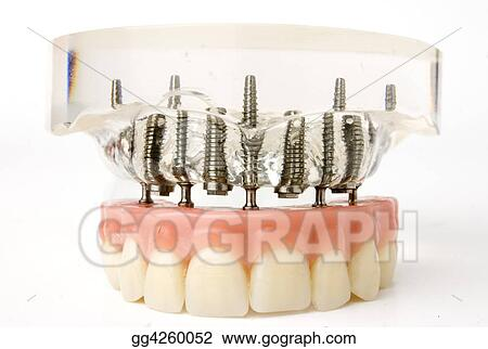 Teeth implant model