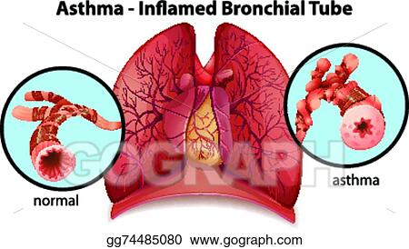 Clip Art Vector - An asthma-inflamed bronchial tube. Stock EPS ...