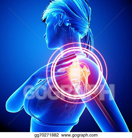 Drawing Anatomy Of Female Shoulder Pain Clipart Drawing