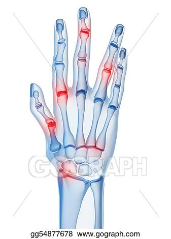 Drawing , Arthritis. Clipart Drawing gg54877678 , GoGraph