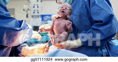 pictures baby being born via caesarean section stock photo