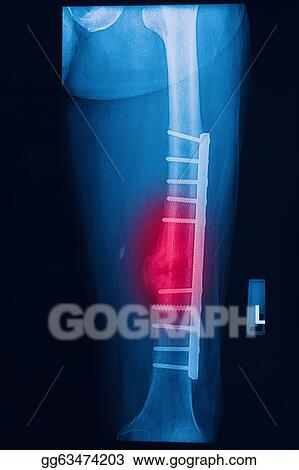 Stock Image - Broken human thigh x-rays image with implant