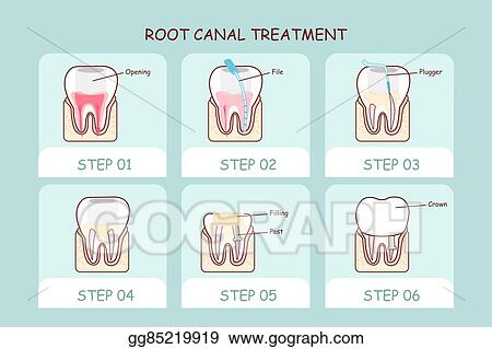 Vector Art - Cartoon tooth root canal treatment   EPS