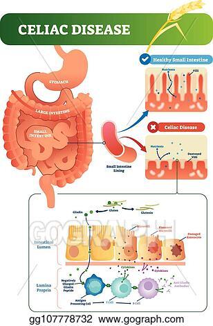 Vector Art Celiac Disease Vector Illustration Labeled Diagram