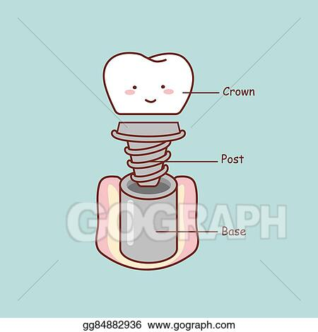 Eps Illustration Cute Cartoon Tooth Implant Anatomy Vector