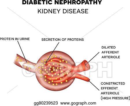 Vector Stock - Diabetic nephropathy, glomerulus anatomy. Clipart ...