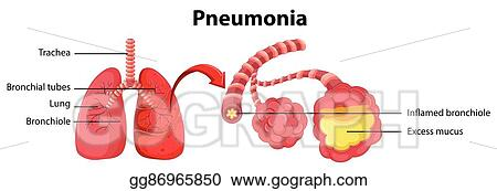 vector art diagram showing lung with pneumonia clipart drawing
