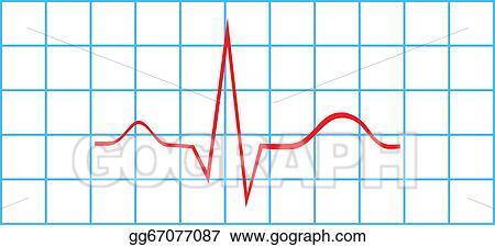 Vector Art - Electrocardiogram sinus rhythm  EPS clipart