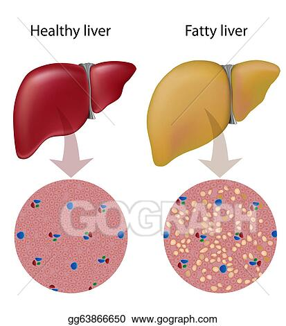 vector stock fatty liver disease, eps10 stock clip art gg63866650 Digestive System Diagram