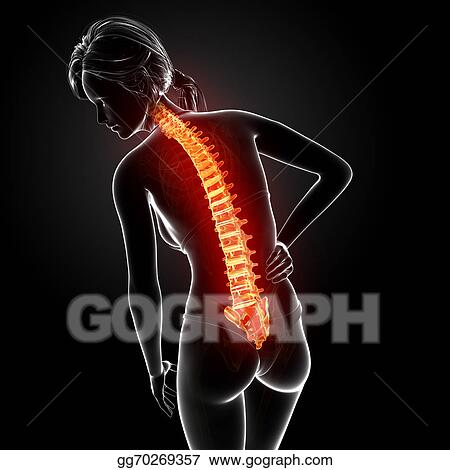 Drawing - Female back pain anatomy. Clipart Drawing gg70269357 - GoGraph
