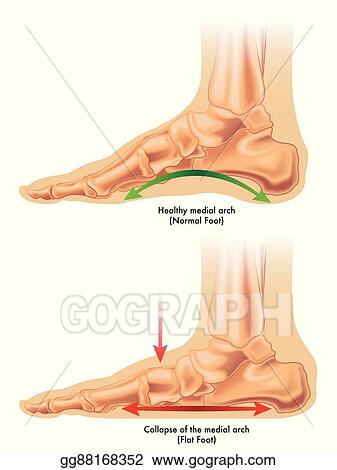 Vector Illustration Flat Foot Eps Clipart Gg88168352 Gograph