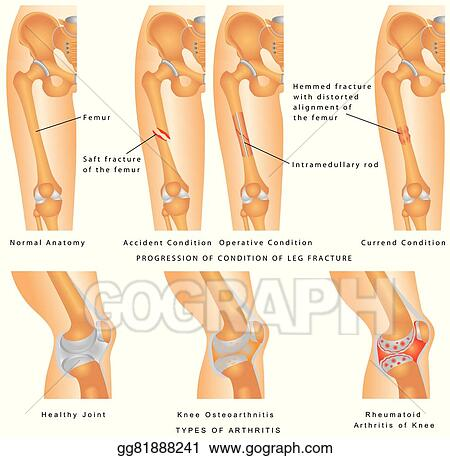 Vector Stock - Fractures of femur  Clipart Illustration gg81888241