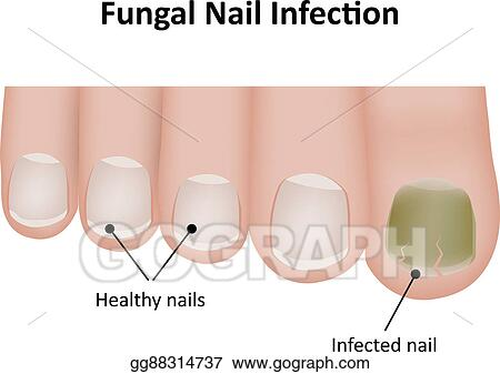 Stock illustration fungal nail infection diagram clipart fungal nail infection diagram ccuart Choice Image