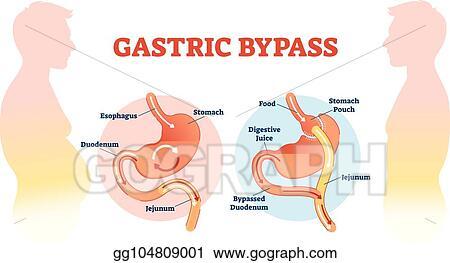 Vector Stock Gastric Bypass Medical Surgery Procedure Vector