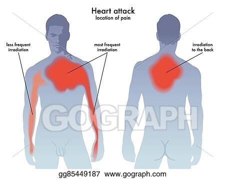 Diagram Of Chest Pain Location Diagram