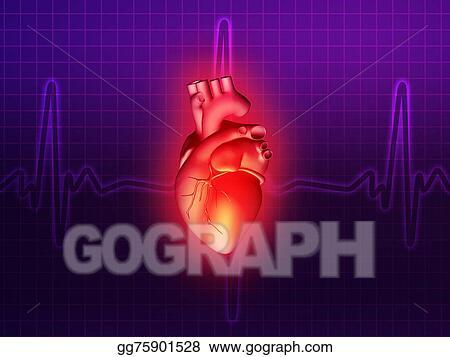 Stock Illustration - Heart disease 3d anatomy illustration purple ...