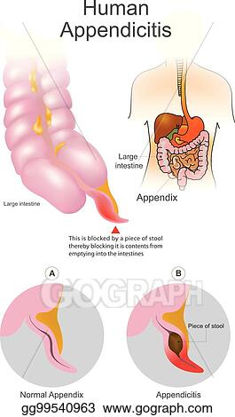 Vector clipart human appendicitis a blocked by a piece of stool a blocked by a piece of stool thereby blocking it is contents from emptying into intestines large intestine system illustration human body parts ccuart Image collections