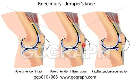 jumpers knee anatomy_gg58107986 vector art jumper's knee anatomy clipart drawing gg58107986 gograph