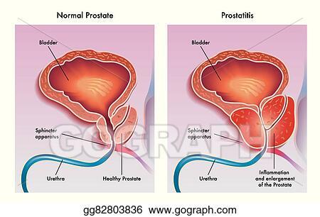 Prostatitis offloxin