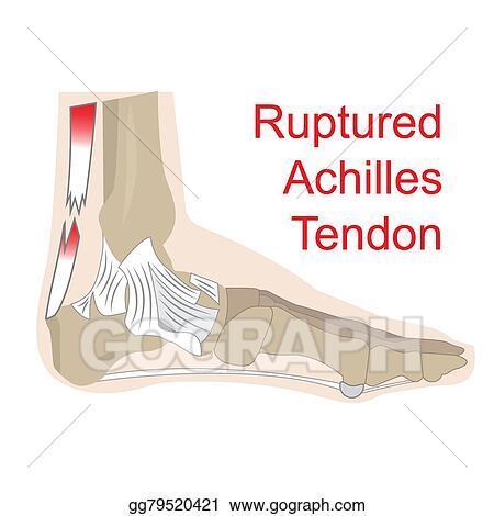 Vector Art - Ruptured achilles tendon. Clipart Drawing gg79520421 ...
