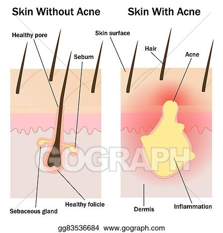 vector stock skin with and without acne stock clip art gg83536684 rh gograph com