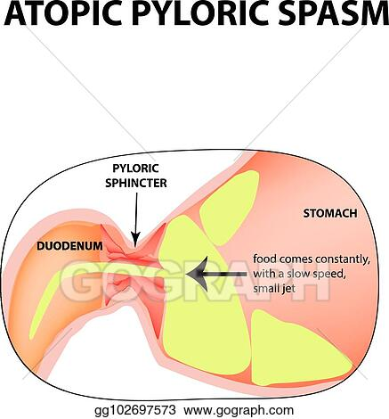 spasms of the pylorus  pylorospasm  atonic  pyloric sphincter of the  stomach  infographics  vector image on isolated background