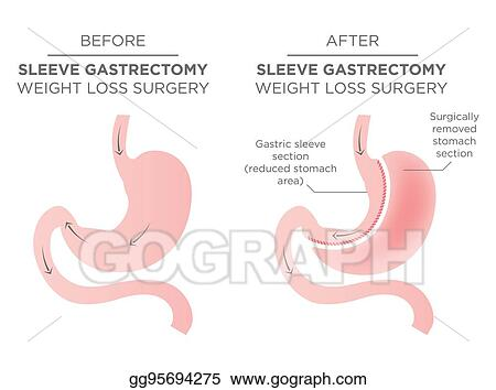Drawing Stomach Staple Bariatric Surgery Resulting In 1 4 Of The