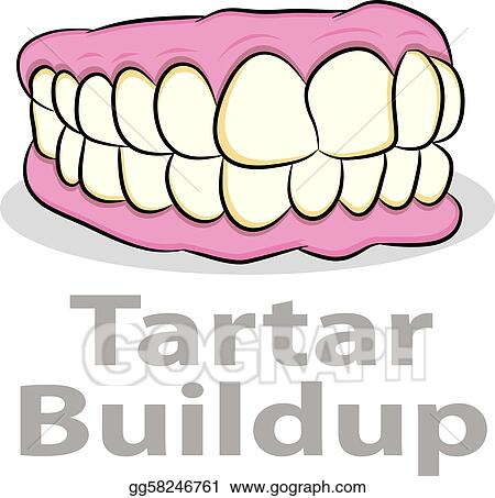 Vector Illustration - Tartar buildup on teeth  Stock Clip