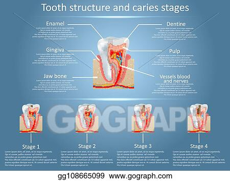 EPS Illustration - Vector tooth structure diagram and dental